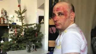 В Пятигорске полиция проверяет информацию об избиении учителя